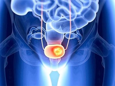 Эффективное лечение рака мочевого пузыря