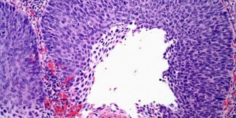 нейроэндокринном раке шейки матки