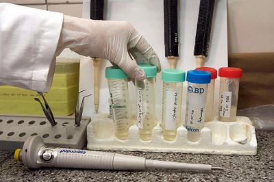 лечение рака шейки матки за границей