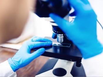 диагностика рака мочевого пузыря в израиле