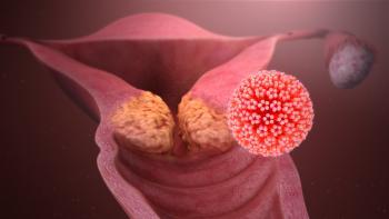 Причины и симптомы рака влагалища