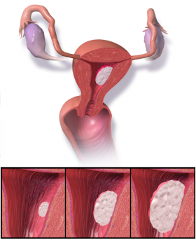 Виды рака матки