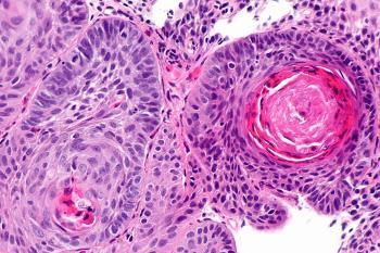 Плоскоклеточный рак матки