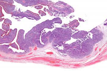 Виды рака яичников: эпителиальный рак