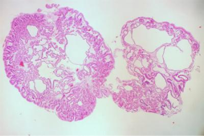 Виды рака желудка
