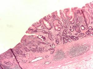 Типы рака желудка