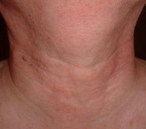 диагностика рака шеи