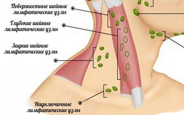 лимфатические узлы при раке