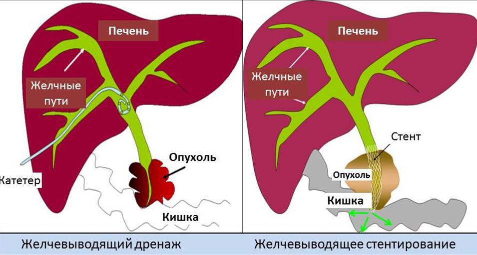 Народные средства для лечения гепатита