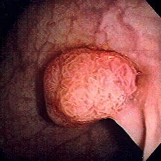 диагностика рака толстого кишечника в Израиле