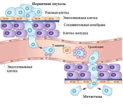 как образуются метастазы