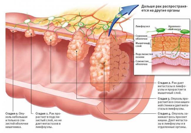 лечения рак примой кишка