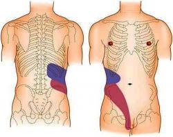 симптомы карциномы почки