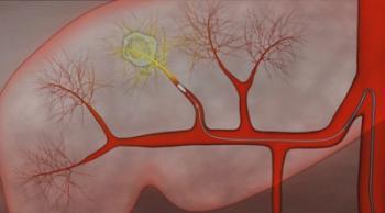радиоэмболизация метастазов в печени