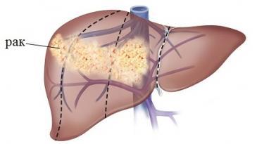 третья стадия рака печени