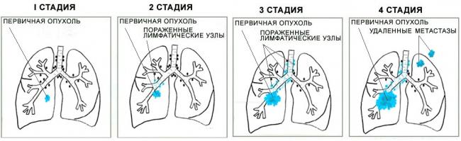 Рак легких 3 степени что делать