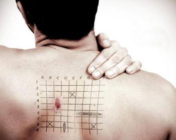 рак кожи стадии