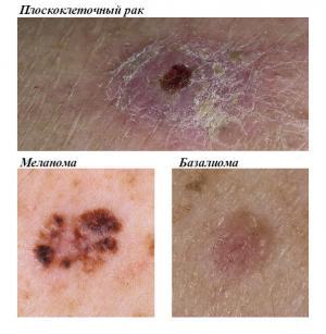 рак кожи виды